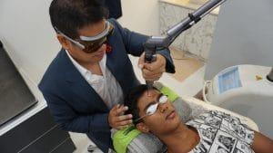 fractional co2 laser acne scars singapore bio aesthetic