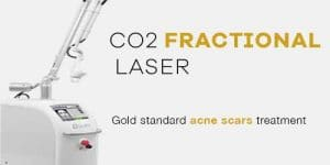 fractional co2 laser acne scars singapore bio aesthetic