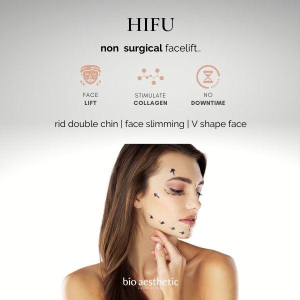 HIFU treatment high intense focused ultrasound singapore