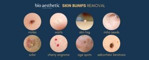 mole removal singapore bio aesthetic laser clinic types of moles