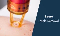 mole removal singapore bio aesthetic laser clinic laser mole removal