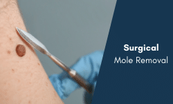mole removal singapore bio aesthetic laser clinic surgical excision mole removal