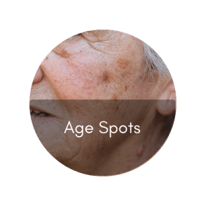 singapore bio aesthetic laser clinic remove age spots